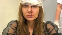 Dudaklarına silikon yaptırmak isteyen Rus şarkıcı, doktorunun saldırısına uğradı!